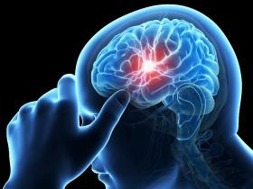 脑梗可以预防吗?