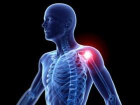 肩周炎是怎么回事,又怎么治呢?